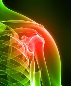 Joint Pain Remedies How To Stop Torn Rotator Cuff Shoulder Pain- Rotator Cuff Treatments and Exercises - There are many reason why we have shoulder pain,and a torn rotator cuff is one of them. You can hurt your shoulder joint when you least suspect it. Shoulder Pain Exercises, Shoulder Injuries, Shoulder Pain Relief, Shoulder Joint, Shoulder Rehab, Shoulder Surgery, Bursitis Shoulder, Spine Pain, Natural Remedies For Arthritis