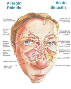How to get rid of allergic rhinitis home remedies - - There are a lot of good things to look forward to once the winter approaches. But if you are How to get rid of allergic rhinitis home remedies. Ganglion, Acne On Nose, Home Remedies, Natural Remedies, Herbal Remedies, Sinus Medicine, Allergic Rhinitis, Human Anatomy And Physiology, Medical Anatomy