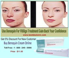 To Make Your Skin Complexion And Gain Back Your Confidence Use Benoquin for Vitiligo