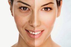 Con el paso del tiempo se van formando las líneas de expresión o arrugas, que lentamente van aumentando su número y profundidad