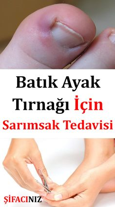 How to Use Garlic for Ingrown Toenail the . S… How to Use Garlic for Ingrown Toenail Garlic is a plant belonging to the Alyum family. Onions are closely related to shallots and leeks. Natural Treatments, Natural Remedies, Herbal Remedies, Afro Hair Loss, Health Advice, Health And Wellness, Health Book, Beauty Care, Beauty Hacks
