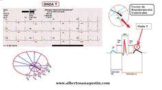 ECG normal (17): Onda T (repolarización ventricular) http://www.albertosanagustin.com