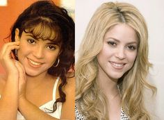 Shakira Denies Nose Job + Then & Now - Colombian pop star Shakira has laughed off reports that she recently went under the knife for a nose job. The singer sparked surgery rumours after adm. Bad Plastic Surgeries, Plastic Surgery Photos, Plastic Surgery Procedures, Celebrity Plastic Surgery, Celebrities Before And After, Celebrities Then And Now, Famous Celebrities, Celebs, Shakira