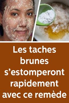 Ways to get Rid Of Brown Spots on Face Sun Spots On Skin, Black Spots On Face, Brown Spots On Hands, Age Spots On Face, Spots On Legs, Dark Spots, Neutrogena, How To Get Rid, How To Remove