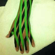 KT Tape edema taping after wrist surgery: via Flickr.