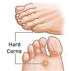 Hard foot corns tend to develop on the top and side of the toes. Find out about the causes, symptoms, diagnosis and treatment of foot corns Toe Fungus Remedies, Foot Remedies, Korn, Toe Callus, Corn On Toe, Corn Feet, Get Rid Of Corns, Clean Toes, Mushrooms