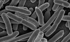 células reais vista de um microscopio eletronico - Pesquisa Google
