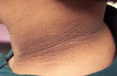 Pigmentation on the nape of the neck is very annoying. Dark Neck can be the result of ignorance. A Few Simple Home Remedies to help you decrease the pigmentation. Dark Spots On Neck, Dark Skin Around Neck, Dark Neck Remedies, Skin Tags Home Remedies, Pigmentation, Skin Spots, Skin Tag Removal, Shiny Hair, Facon