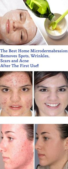 The Best Home Microdermabrasion: Removes Spots, Wrinkles, Scars and Acne After The First Use! – Healthy Magazine