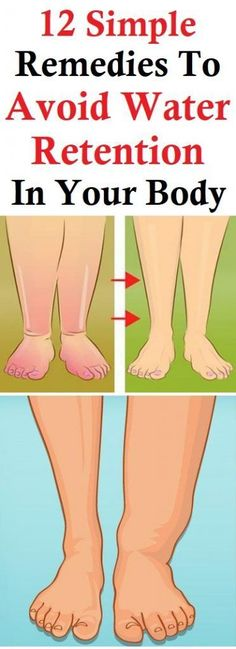 Health Remedies Water Retention Symptoms Causes and Natural Remedies- Water makes up about three fifths of the body weight. Therefore, their presence is common in tissues of the body. Health Remedies, Home Remedies, Natural Remedies, Herbal Remedies, Health Advice, Health And Wellness, Health Care, Health Diet, Physical Therapy