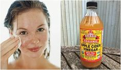 Washing your face and skin with apple cider vinegar can do some pretty incredible things. Here's how - and why - you should give it a go. Apple Cider Vinegar Health, Unfiltered Apple Cider Vinegar, Apple Cider Benefits, Apple Vinegar, Vinegar For Acne, Vinegar For Hair, Skin Care, Face Skin, Beauty Tips
