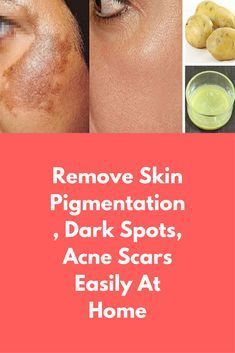 Remove Skin Pigmentation, Dark Spots, Acne Scars Easily At Home A Magical Remedy to Remove Skin Pigmentation at home naturally. These is the amazing home remedies for Hyperpigmentation with Potato. These Remedy also remove your dark spot, Acne Scars and blemishes on skin For this take 1 tomato, take out its juice. Pottao juice is very effective to remove dark spots from your skin and …
