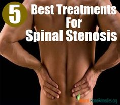 5 Best Spinal Stenosis Treatment