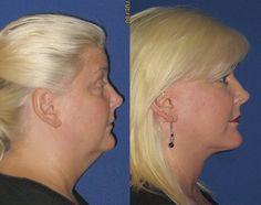 Carol, 52 – Youthful Reflections Facelift / Reflection Lift