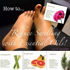 Essential oils for swollen feet, ankles and calves. Apply 2 drops each of doTERRA Lemongrass, Grapefruit and Cypress essential oils diluted in 1 T. of fractionated coconut oil. Massage into feet, ankles and calves, upwards towards the heart.