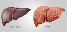 9 remedios caseros para la cirrosis hepática