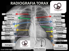 Viver Enfermagem em Cuidados Intensivos: RX DE TORAX... VENDO AS SUAS ESTRUTURAS Nursing School Tips, Nursing Notes, Medical School, Radiology Imaging, Family Nurse Practitioner, Medicine Student, Human Body Systems, Respiratory Therapy, Medical Anatomy