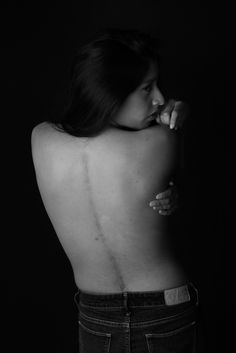 Cara's Story -  What didn't kill me made me stronger. #RawBeauty #bodyimage #scoliosis #scar