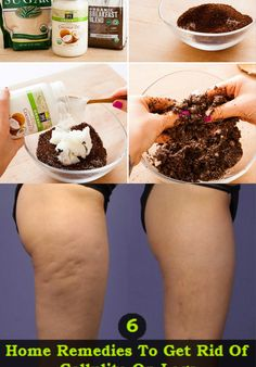 "Cellulite has been long-deemed ""untreatable."" But frequently, the solve for many of our beauty concerns is already in our pantry or garden. Try this at-home cure using coffee grounds and coconut oil for cellulite. Bb Beauty, Beauty Care, Beauty Skin, Home Remedies, Natural Remedies, Beauty Secrets, Beauty Hacks, Cellulite Remedies, Cellulite Scrub"