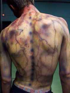 these lightning strike scars look so cool
