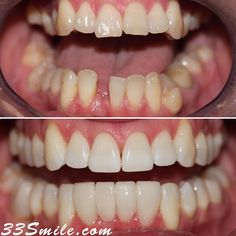 Happy Monday! Wow what a week. We hope everyone is doing well and stayed safe through last week. Were happy to be back at work full time now so please come and see us if you are in need of an appointment. Were very happy with how this case turned out and so was our patient! The treatment was Invisalign and a bridge for the lower teeth. We also offer cosmetic shaping as a bonus to doing Invisalign with us. Call us to schedule a free consultation! #drjamsmiles #33Smile . . All photos and video o Dental Cosmetics, Dental Procedures, Cosmetic Dentistry, Beautiful Smile, Happy Monday, Schedule, Teeth, Bridge, Photos