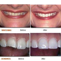 new york city cosmetic dentistry