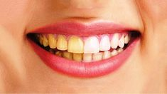 Lifestyle.: Natural ways to whiten yellow between the Teeth?