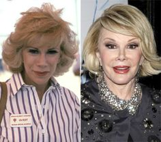 Celebrity plastic surgery faces before after8 Celebrity plastic surgery faces: before & after