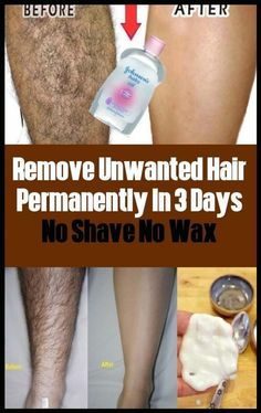 Permanently Remove Unwanted Hairs No Shave No Wax In 3 days #BodyHairRemoval #UnwantedHairRemovalPowder #RemoveUnwantedHairPermanently #LegHairRemoval #EasyWayToRemoveUnwantedHair #PermanentHairRemovalCream #HairRemovalMachine Permanent Facial Hair Removal, Chin Hair Removal, Upper Lip Hair Removal, Underarm Hair Removal, Electrolysis Hair Removal, Remove Unwanted Facial Hair, Hair Removal Diy, Hair Removal Methods, Unwanted Hair