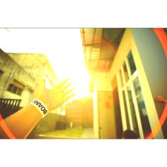 Sun burn n give u hope