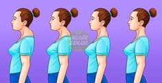Posture – Upper Crossed Syndrome Upper Crossed Syndrome is a descriptive postural term coined by Dr. It is associated with other postural types such as Lower Crossed Syndrome and Layered Syndrome. Neck Hump, Buffalo Hump, Posture Exercises, Kyphosis Exercises, Workout Exercises, Stretches, Healthy Holistic Living, Perfect Posture, Neck Pain