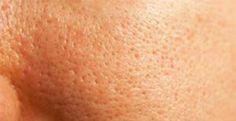 Beauty Skin, Skin Care, Face, Alter, Centre, Keto, Snacks, Diy, Big Pores