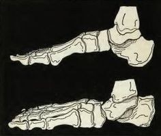 Skeleton of a flat foot. The foot becomes longer, because the arch has been collapsed.
