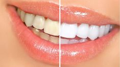 How to Whiten Teeth Naturally at Home - My Favorite Things