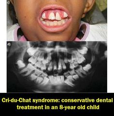 Cri-du-Chat syndrome: conservative dental treatment in an 8-year old child | OVI Dental