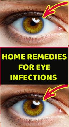natural home remedy for sore throat, Eye, Skin and also Sinus infections.Understanding signs and also Natural ways to heal and ease pain. Eye Infections, Sinus Infection, Red Eye Causes, Corneal Ulcer, Intracranial Pressure, Eye Facts, Metabolic Disorders, Sinus Congestion, Self Treatment