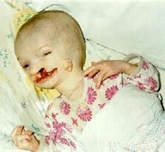 A child exposed with severe birth defects