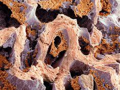 Bone marrow, SEM - Stock Image - P234/0073 - Science Photo Library