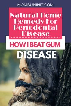 A natural home remedy for periodontal disease to help improve and maybe even cure your gum disease whitens teeth freshens breath and heals gums Periodontal Disease natura. Home Health Remedies, Cold Home Remedies, Natural Home Remedies, Herbal Remedies, Coconut Oil For Teeth, Coconut Oil Pulling, Teeth Whitening Remedies, Natural Teeth Whitening, Doterra