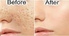 A lot of people have large pores and reach for different items and solutions for make these pores less noticeable. There are plenty of items...