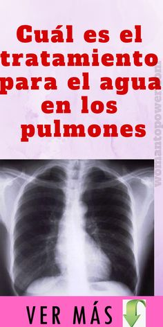 qué pasa cuando hay agua en los pulmones