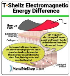 Electromagnetic energy can penetrate the Achilles tendon much more effectively in comparison to conductive heat produced by your typical heating pad or heated gel pack. Insertional Achilles Tendonitis, Knee Tendonitis, Bursitis Hip, Ligament Injury, Knee Osteoarthritis, Knee Injury, Bursitis Shoulder, Runners Knee, Runners High
