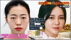 Breast surgery in South Korea(engfreshps、coм)⇔〖Breast surgery in South Korea Perfect!〗,〖Breast surgery in South Korea♬+ That's amazing!〗 Breast Augmentation in South Korea↑ Wow! Breast surgery in South Korea That's amazing! Breast surgery in South Korea South Korean Plastic Surgery, Plastic Surgery Korea, Bad Plastic Surgeries, Plastic Surgery Gone Wrong, Plastic Surgery Procedures, Celebrity Plastic Surgery, Cellulite, Plastic Surgery Quotes, Lips
