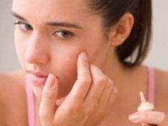 Lebensmittel verursacht Akne ,Lebensmittel Ursache Akneausbruch ,Ernährung verursacht Akne ,fettige Lebensmittel verursacht Akne ,tut Nahrung verursacht Akne