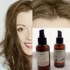 Adult Women's Hair Loss Treatment