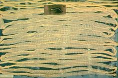 Diphyllobothrium latum, broadfish tapeworm, Symptoms: weightloss and weakness Treatment: niclosamide Found: 8/7/16 ruby.fgcu.edu