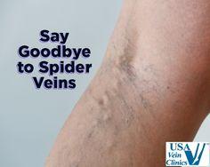 Say Goodbye to Spider Veins - http://www.usaveinclinics.com/