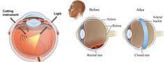Retinal Detachment Surgery India