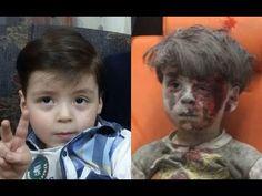 Pai de menino-símbolo de Aleppo diz a verdade sobre as fotos ensaiadas
