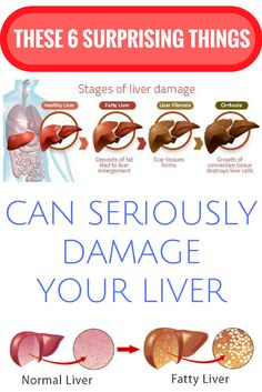 THESE 6 SURPRISING THINGS CAN SERIOUSLY DAMAGE YOUR LIVER